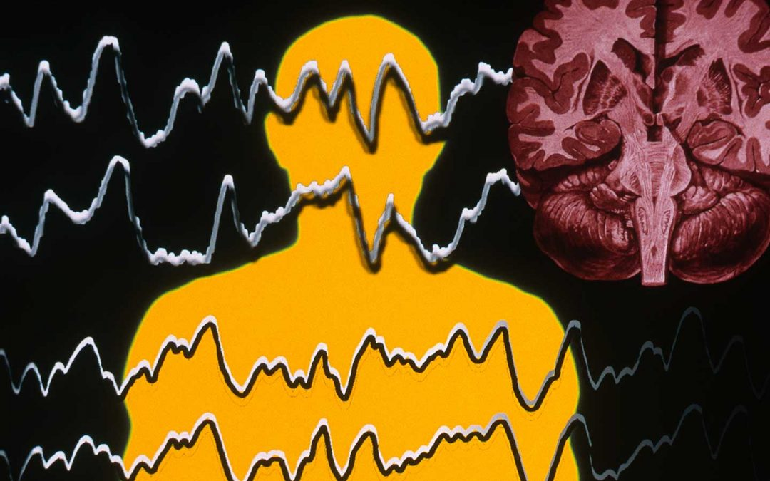 Patients with new-onset focal seizures face delayed and missed diagnosis in emergent settings